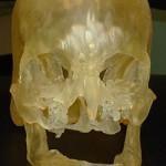 Ausilio alla chirurgia per i trapianti di volto con stampa 3D