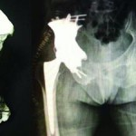 Protesi in Titanium con la stampa 3D per pazienti affetti da metastasi ossee
