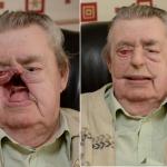 Padre riceve un volto stampato in 3D dal figlio dopo il cancro