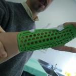 STAMPA 3D E MEDICINA:  Wasp e Istituto Ortopedico Rizzoli