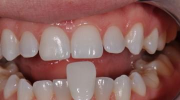 Stampante 3D SLA che stampa Denti Definitivi – Dalla Cina una rivoluzione nel settore odontotecnico