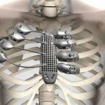 Malato di cancro riceve sterno e costole stampate in 3D