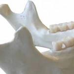 Scienziati spagnoli studiano biomateriale stampato in 3D,  pazienti con grave perdita ossea maxillo-facciale