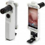 MobileODT – smartphone e stampa 3D per prevenire il Cancro all'Utero