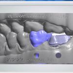 Odontotecnica e Stampa 3D –  Realizzazione del modello 3D d iuna protesi dentale