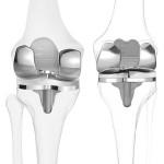 Costruire protesi per ginocchio stampate in 3D grazie a ConforMIS