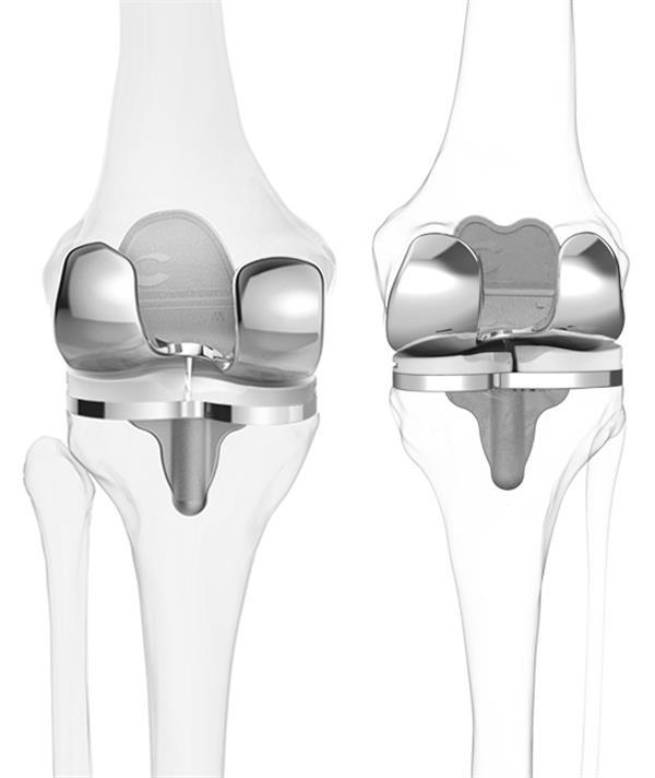 protesi-ginocchio-stampa-3d-3