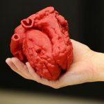 L'evoluzione della Stampa 3D nel settore Medico secondo Materialise