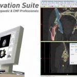 Materialise lancia Mimics Innovation Suite 19 per l'imaging 3D medico