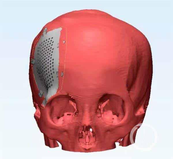 cranio-titanio-stampato-3d-1