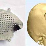 Impianto cranio in titanio stampato in 3D per paziente colpito da tumore (osteoma) alla fronte