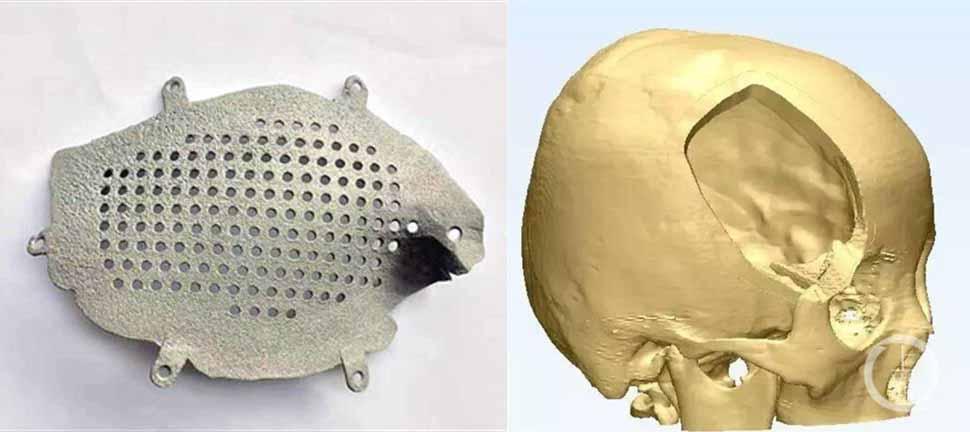cranio-titanio-stampato-3d-home