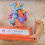 Modellazione digitale e Stampa 3D in ospedale per aiutare i bambini gravemente malati