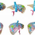 Modelli di organi personalizzati pre-chirurgici stampati in 3D a 150 €