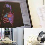 Stampati in 3D scheletri realistici di bambino con cuore e polmoni per migliorare la precisione dei chirurghi