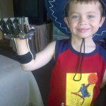 Protesi per la mano condivise e a basso costo grazie alla stampa 3D