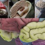 Modelli formativi neurochirurgici ultra-realistici grazie alla Stampa 3D e agli effetti speciali