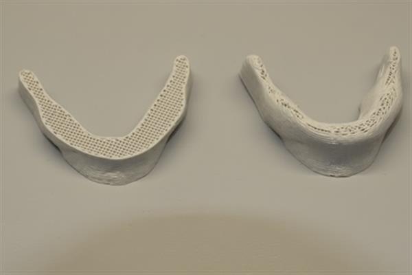 Osso di mascella stampato in 3D con inchiostro a base di cellulosa