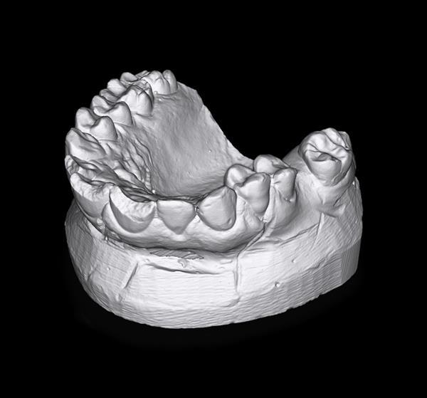 modello dentale acquisito con scanner 3d poliga