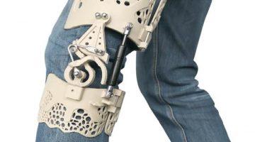 La ginocchiera BioNEEK realizzata in PEEK rivoluziona la cura del ginocchio