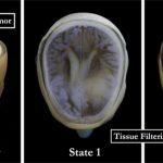 La tecnologia 3D Bitmap permette di stampare l'anatomia del cervello in meno di un'ora