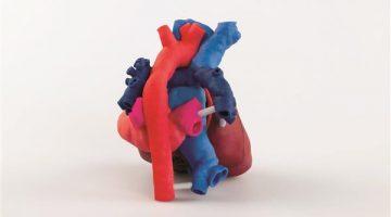 Modelli di cuori pediatrici stampati in 3D  permettono di preparare interventi chirurgici complessi