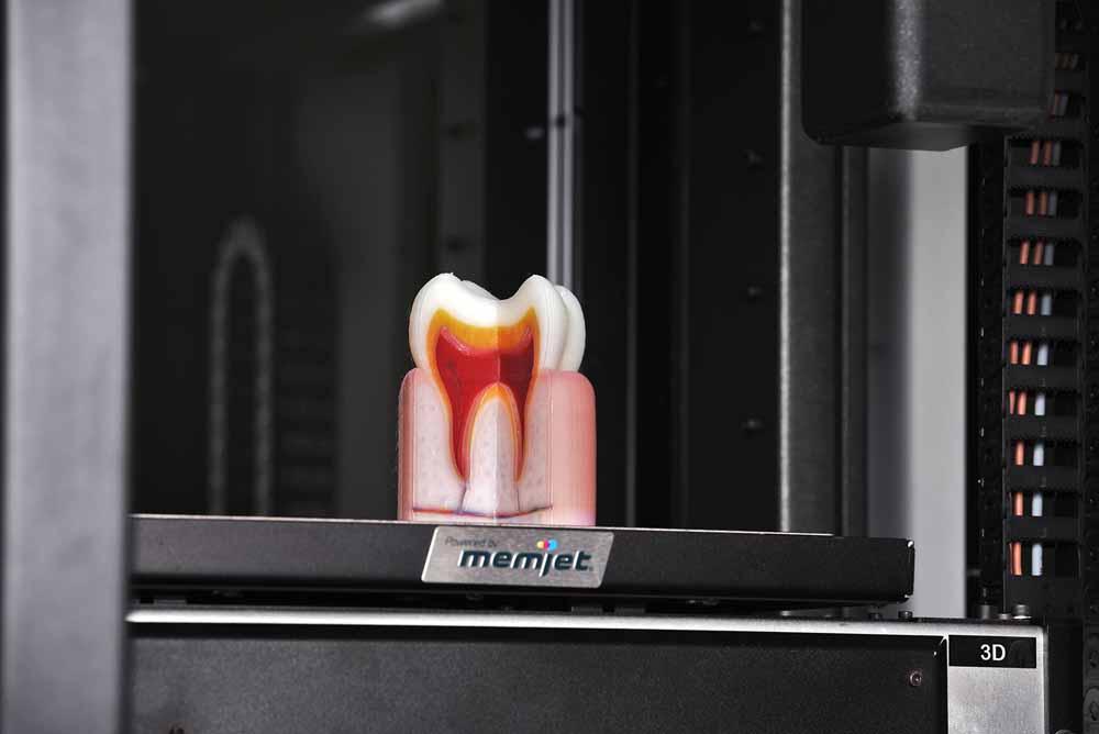 Un modello di dente sul piano di stampa della stampante 3D OVE.