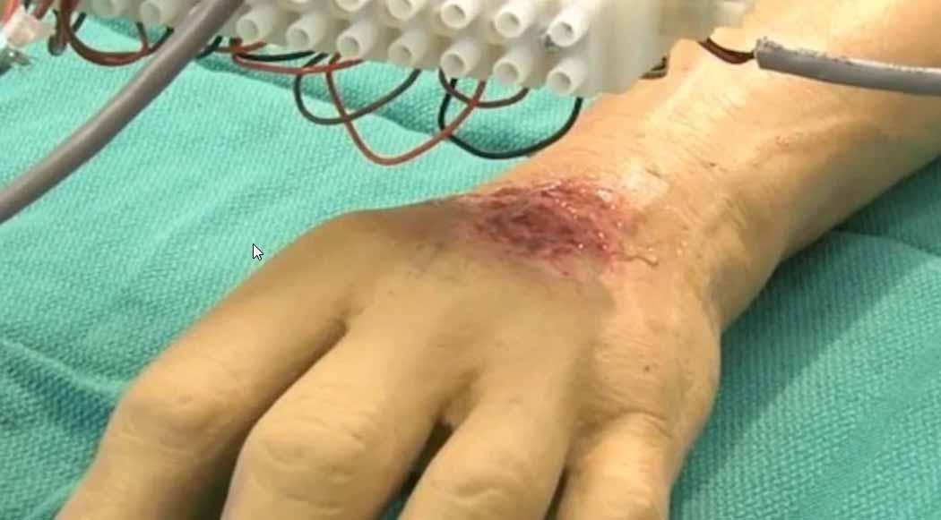 Una bioprinter della pelle viene stampata direttamente su una vittima di ustioni modello
