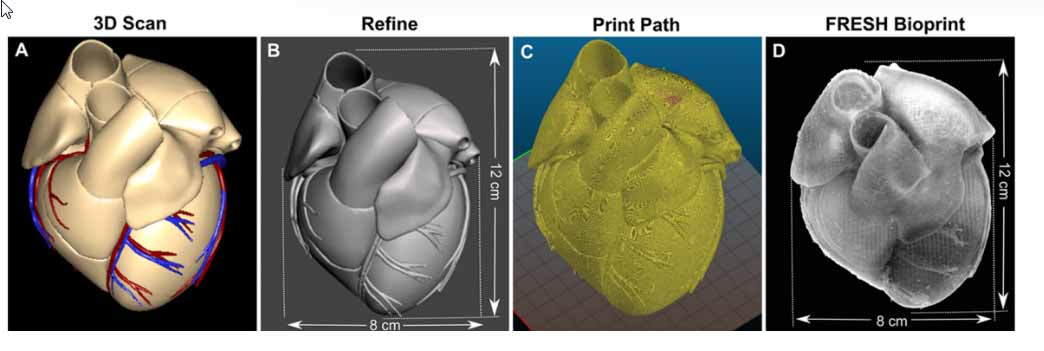 la prima immagine mostra il cuore in base a una risonanza magnetica e l'ultima immagine è la stampa FRESH a grandezza naturale utilizzando alginato