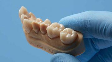Formlabs rivoluziona il mercato dentale della stampa 3D con il lancio di  Permanent Crown Resin, la prima  resina per corone permanenti